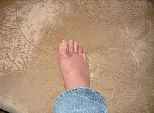 При переломе пальца отёк может распространиться на всю стопу