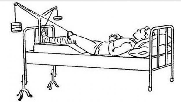 Вытяжение при переломе шейки бедра