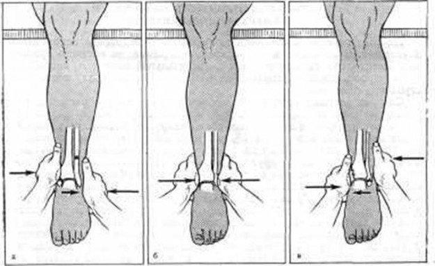 Этапы вправления при переломе лодыжки