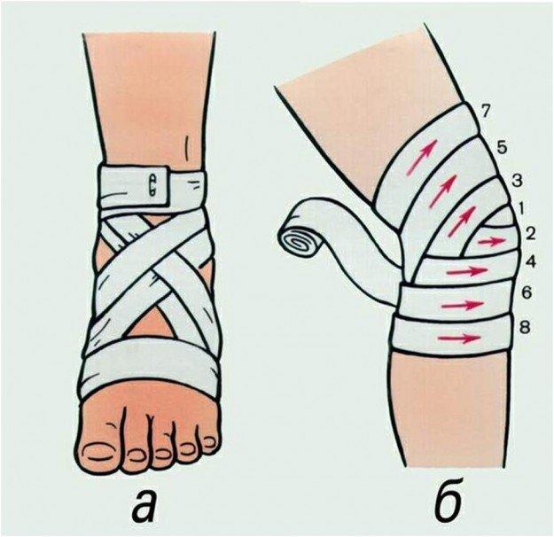 Примеры наложения бинта на голеностоп и колено