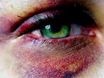 Гематома вокруг женского глаза