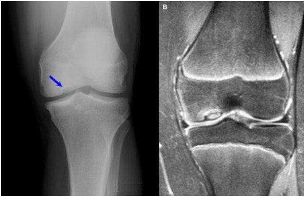 Признаки болезни Кёнига на рентгене и МРТ