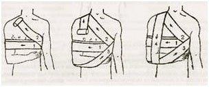 рисунок пошагового наложения повязки Дезо
