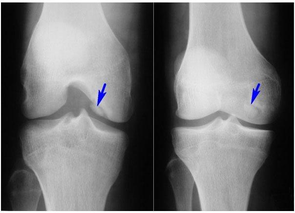 Третья и четвёртая стадии на рентгене