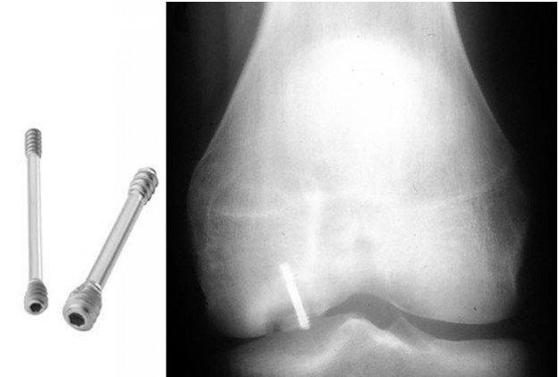 Рентген кости
