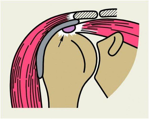 Тендинит плечевого сустава, схема