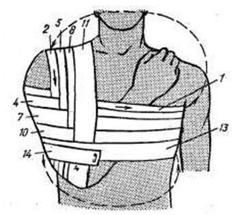 Техника наложения повязки Вельпо