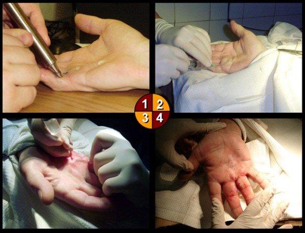 Игольчатая апоневротомия