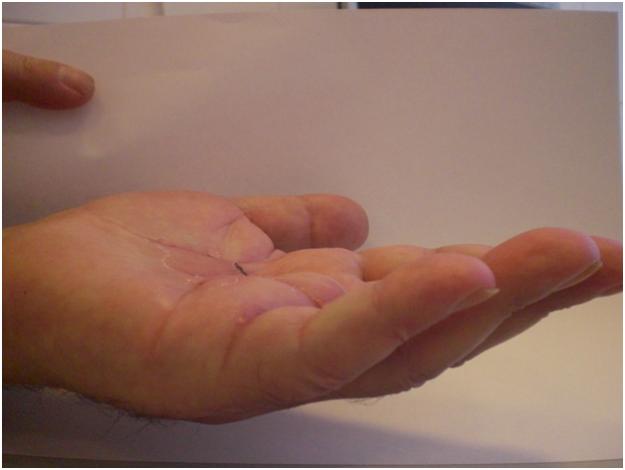 Рука после операции