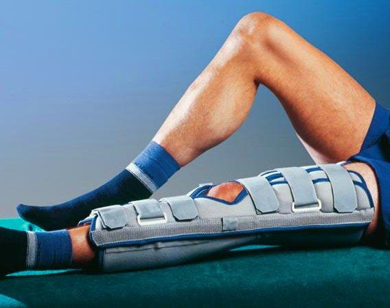 Иммобилизация вывиха коленного сустава
