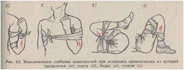 Возможные техники пережатия артерий