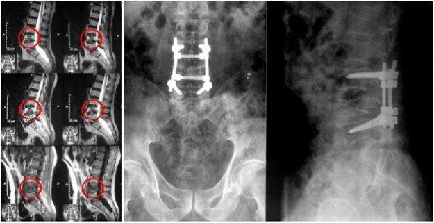 Снимки рентгена позвоноччника