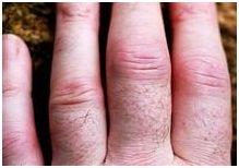 отёкшие пальцы