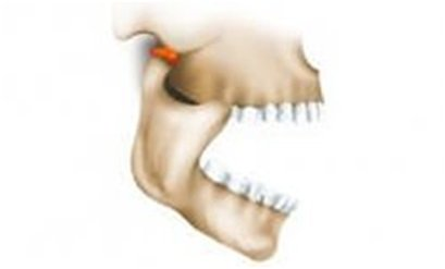 человеческая челюсть