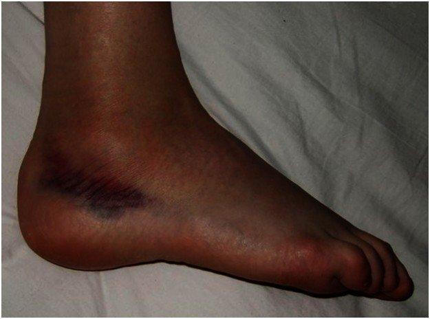фото ноги с вывихом стопы
