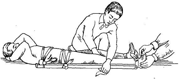 Врач крепит пострадавшего на носилки