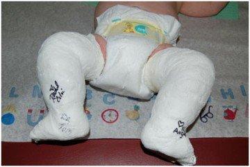 ребенок лежит с загипсованными ножками