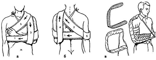 Пошаговое изображение как наложить повязку Дезо