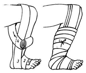 схема наложения мягкой повязки на ногу
