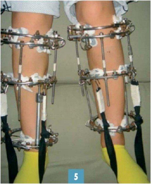 Аппарат Илизарова на ногах у ребенка
