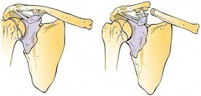 схема перелома лопатки