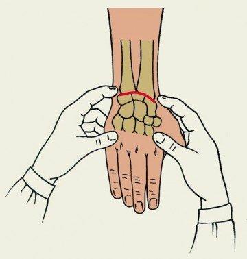 схема массажа лучевой кости