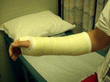 Рука больного в циркулярном гипсе