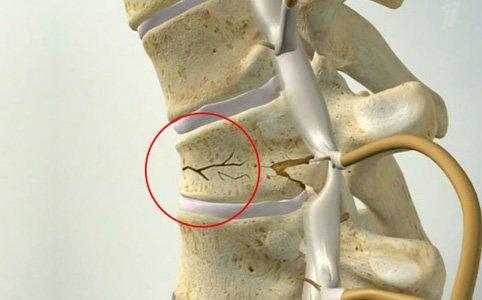 Травма спинного мозга осколками