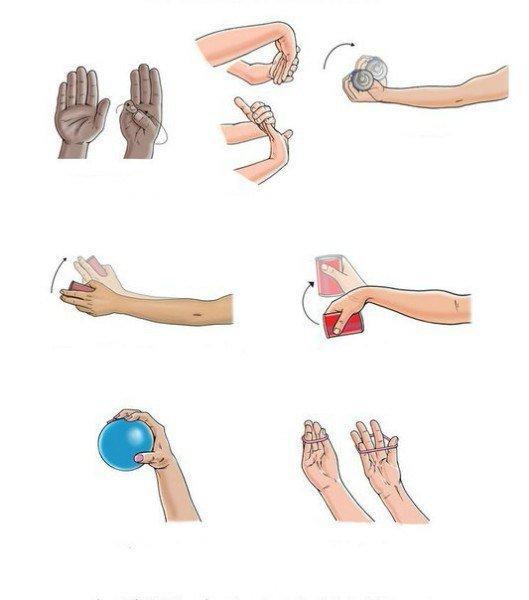 Упражнения при тендовагините лучезапястного сустава