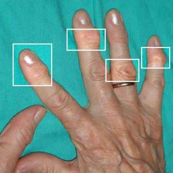 Признаки артроза пальцев рук