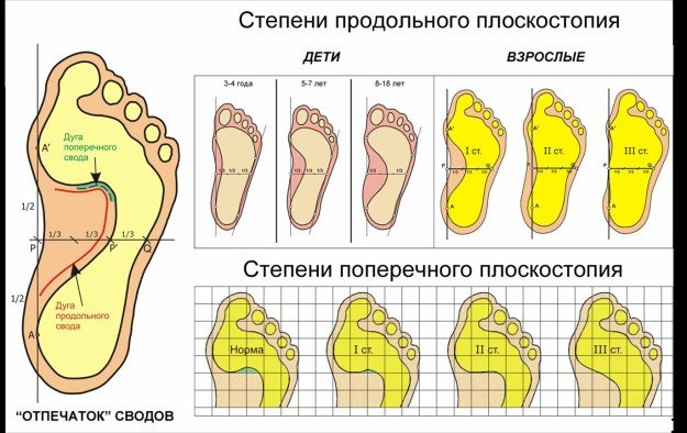 Степени и формы плоскостопия
