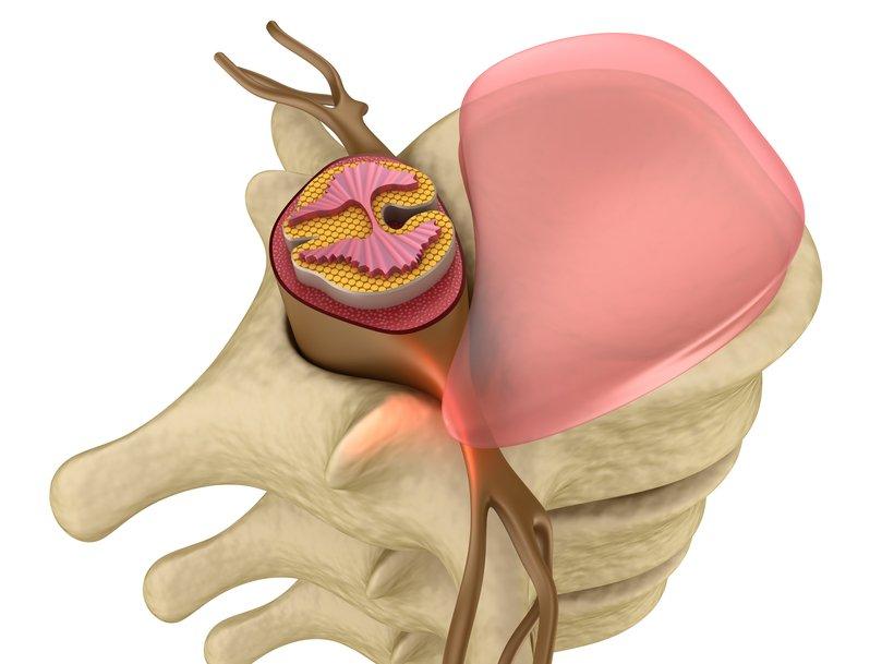 Протрузия межпозвоночных дисков грудного отдела позвоночника