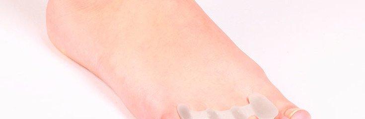 Молоткообразный палец: причины, симптомы, лечение