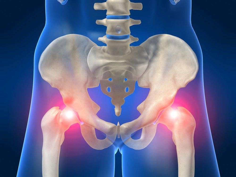 Боль в тазобедренном суставе— причины и методы лечения