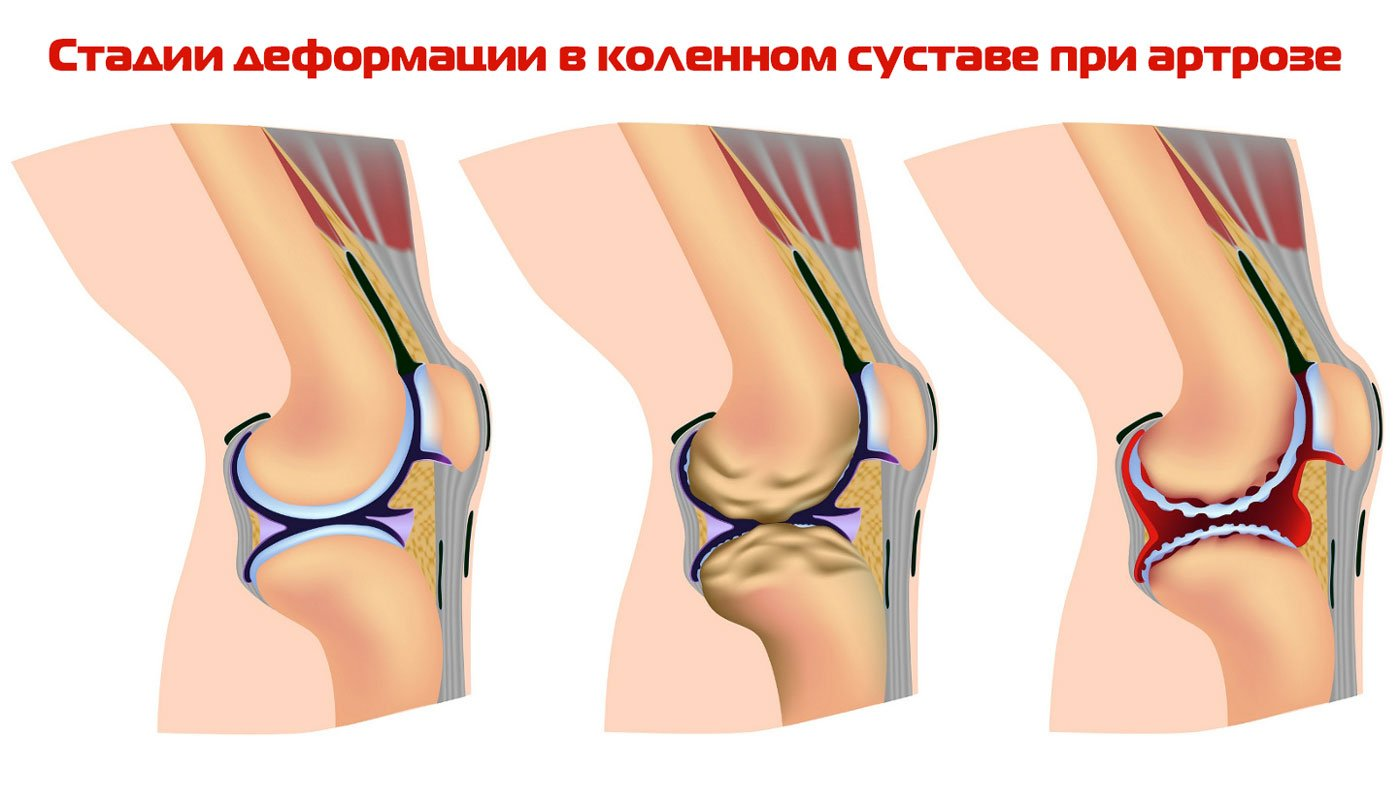 Артроз коленного сустава: лечение заболевания