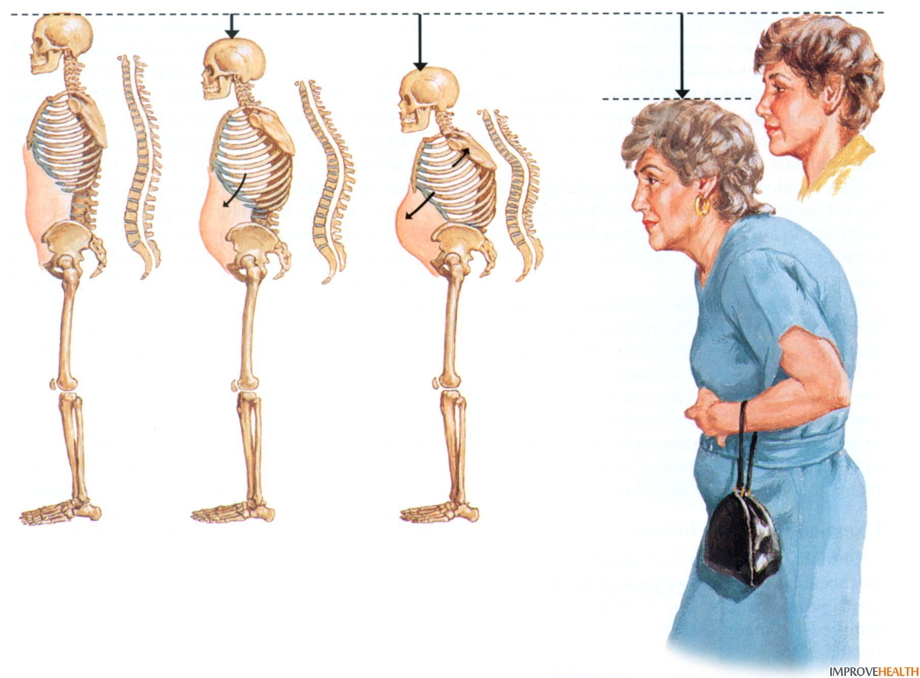 Остеопороз: симптомы, стадии поражения, причины