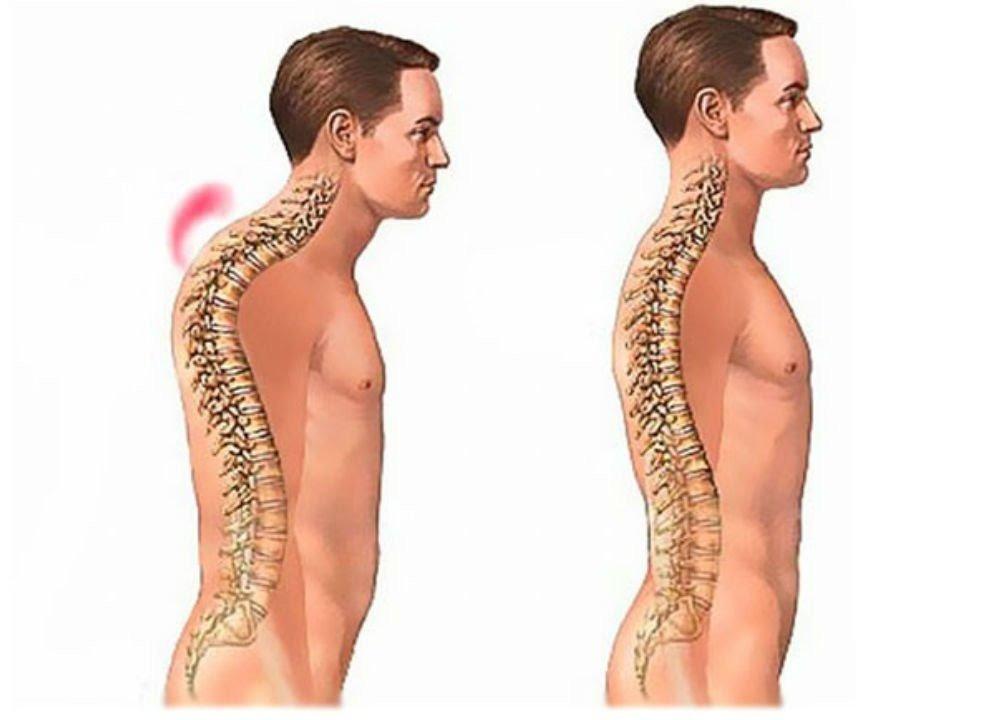 Сколиоз грудного отдела позвоночника: причины, лечение