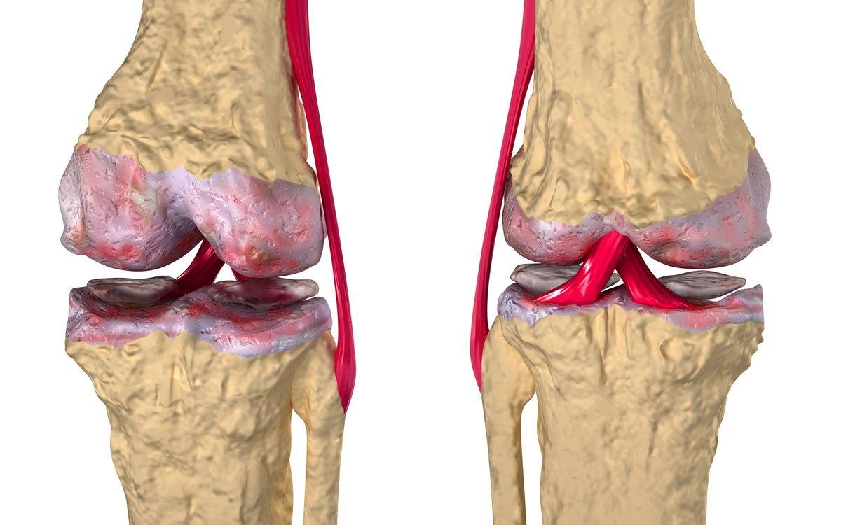 Артрит плечевого сустава симптомы лечение народные средства