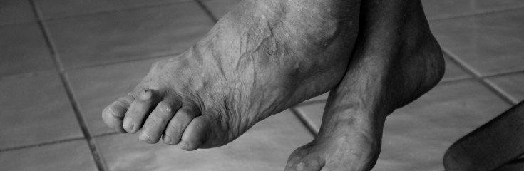 Лечение артроза стопы и методы профилактики