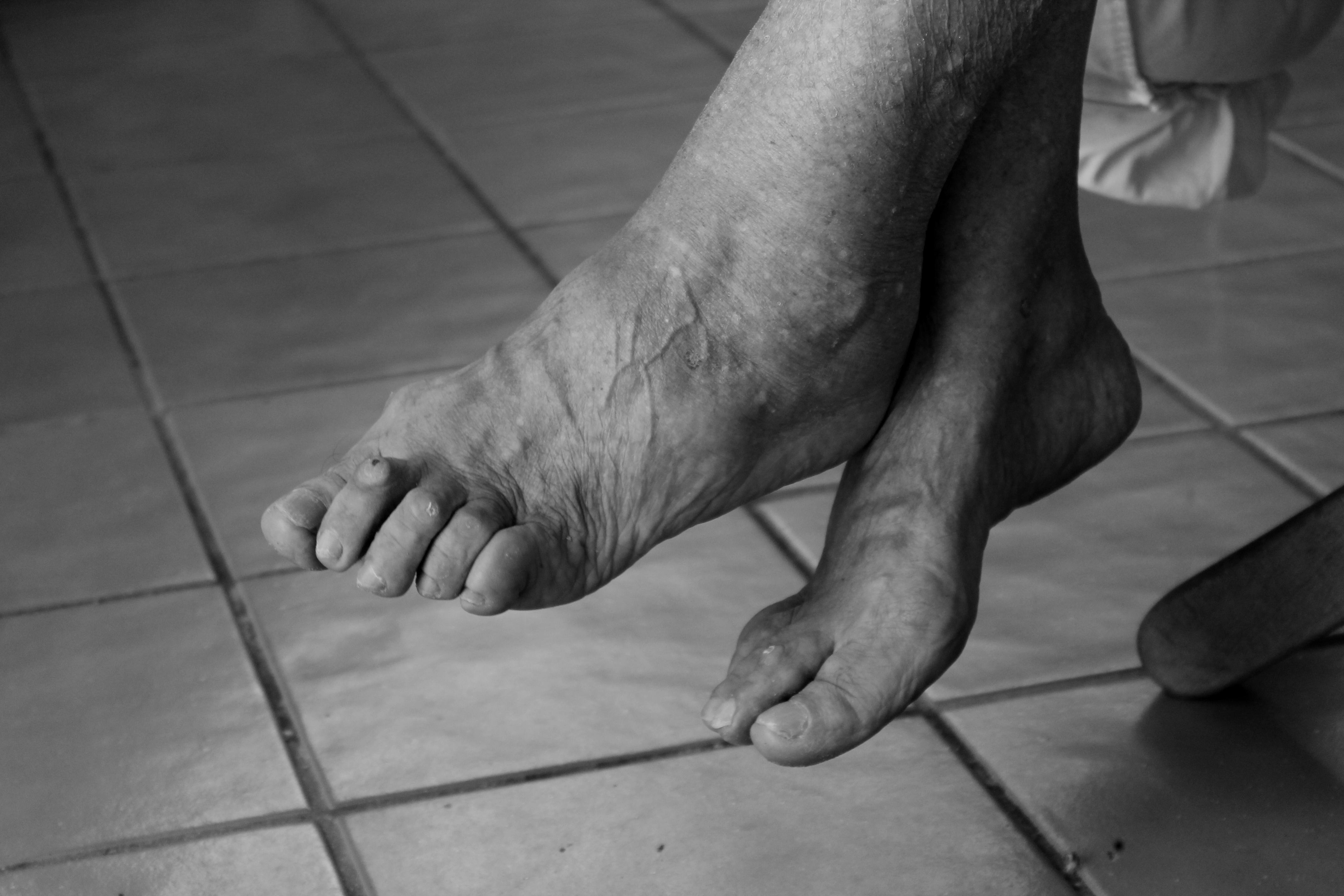 Компресс с хреном от болей в суставах