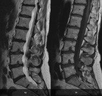 Ретролистез позвонка— симптомы, причины, лечение