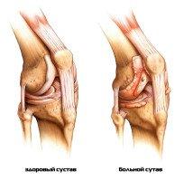 Артрит коленного сустава: лечение, причины