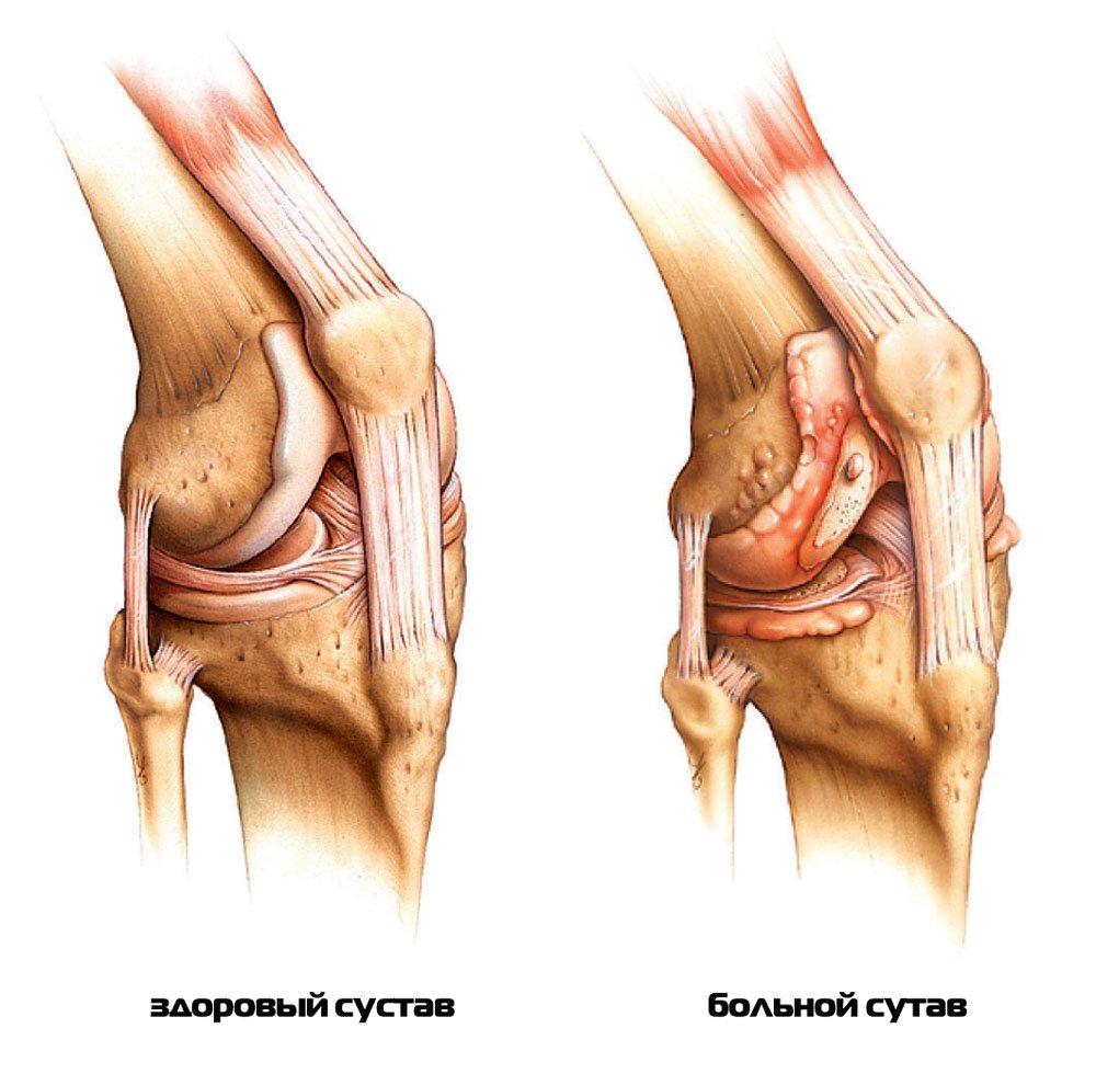 Санаторное лечение ревматоидного артрита