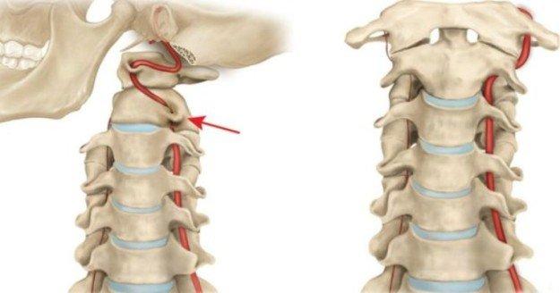 Защемление позвоночного нерва