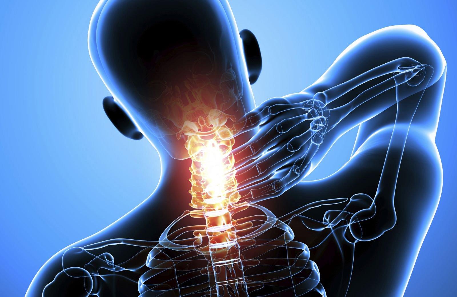 Помогает ли воротник Шанца при остеохондрозе шейного отдела и как его правильно выбрать