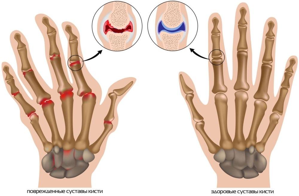 Симптомы артрита суставов пальцев рук