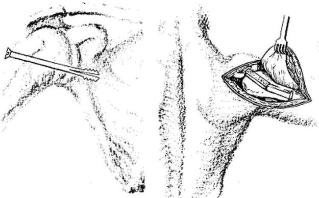 Схематическое изображение артродеза плечевого сустава