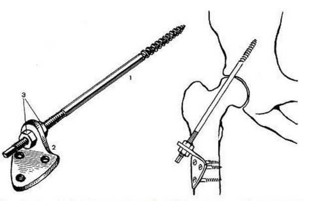 Одна из методик проведения артродеза тазобедренного сустава