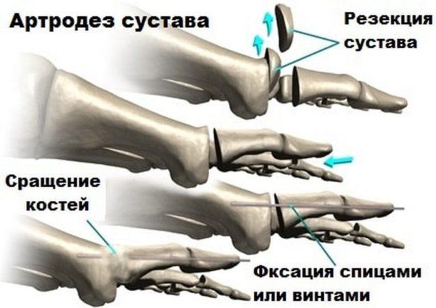 Схематическое изображение методики артродеза