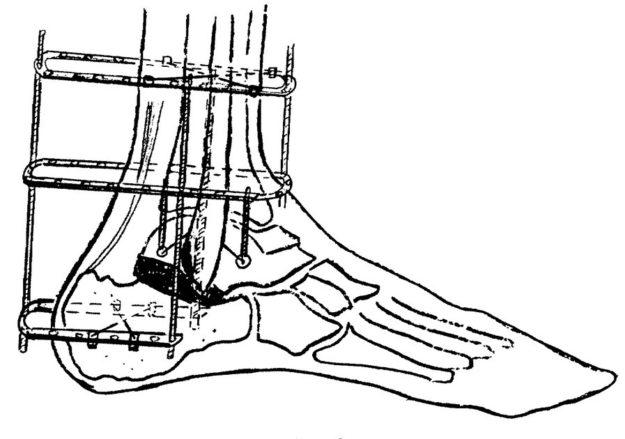 Схематическое изображение артродеза подтаранного сустава